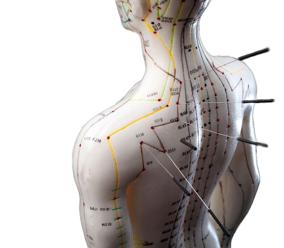 Neo-Medica - modello agopuntura cinese